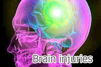Brain injuries - a test was discovered for a fast detection of brain injuries