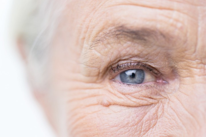 Certain Eye Conditions May be Predictors of Alzheimer's